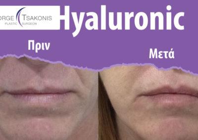 hyaluronic-prin-meta-1