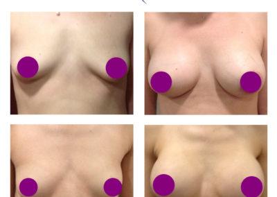 πλαστική στήθους