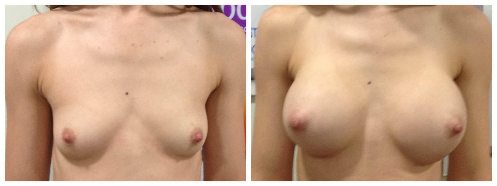 στήθος πριν και μετά