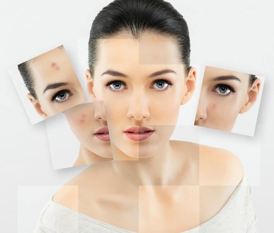 Acne Treatment - Facial Cleansing | tsakonis gr