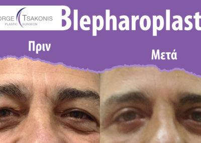 Βλεφαροπλαστική πριν και μετά