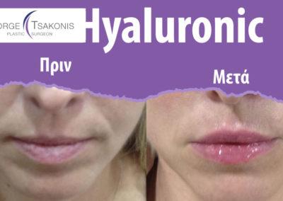 Υαλουρονικό οξύ Πριν και Μετά