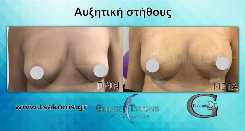 αυξητική στήθους πριν και μετά