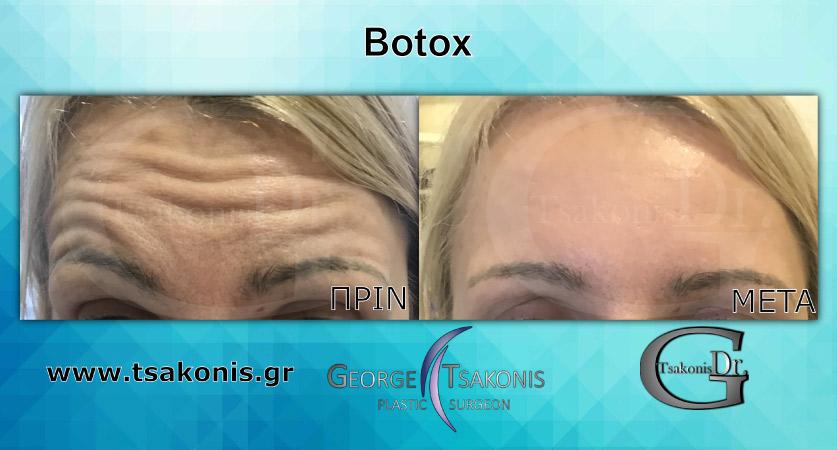 Botox - Μπότοξ