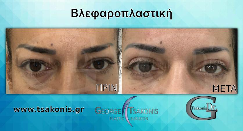 Βλεφαροπλαστική πριν και μετά την επέμβαση